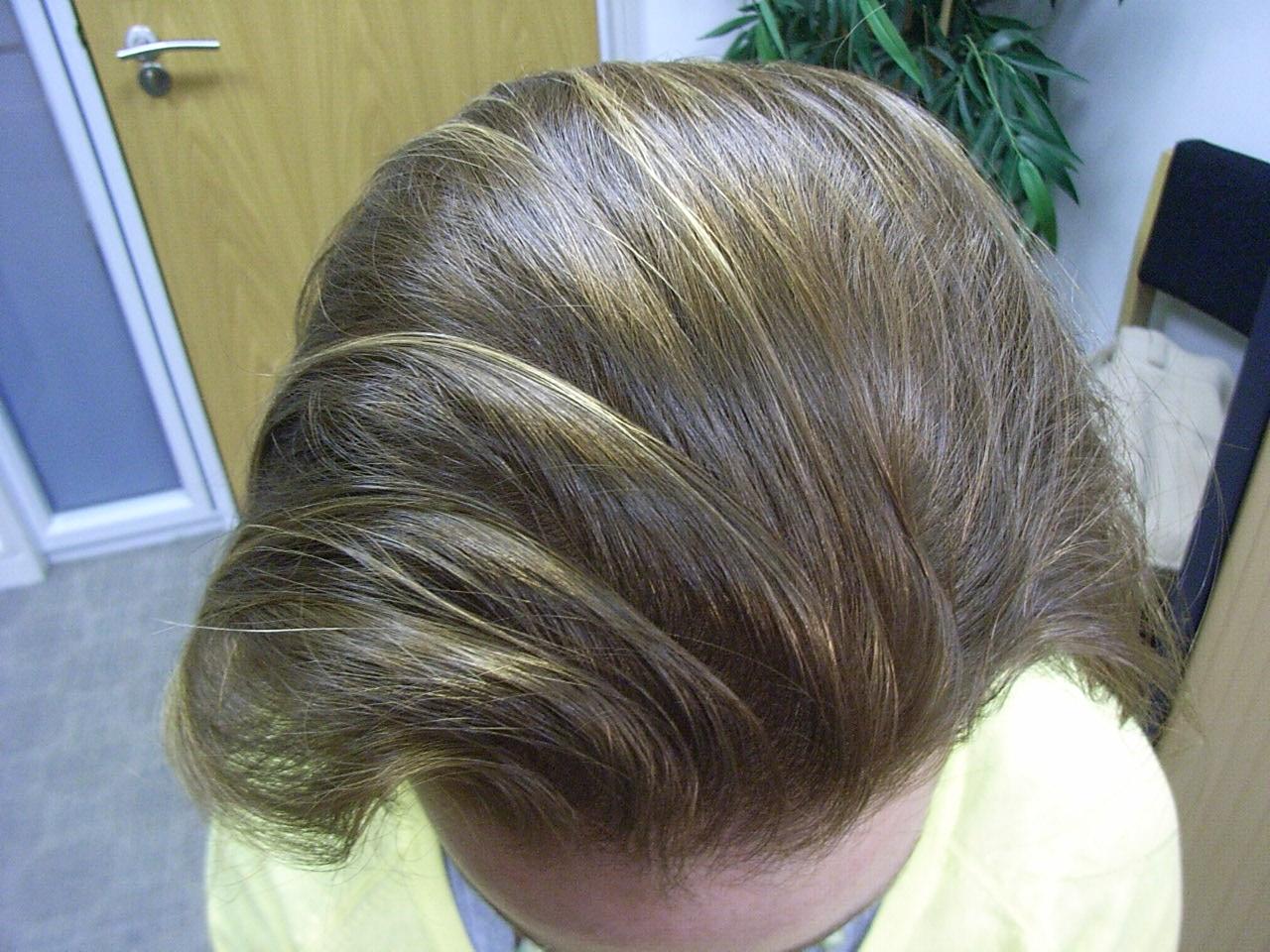 Alopecia in women: types, treatment. Androgenic Alopecia in Women 37